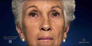Routine Age Reverse Booster Treatment - Demonstração