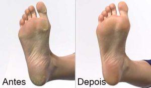 Hydra Power Concentrado anti-ressecamento para os pés - Antes e Depois